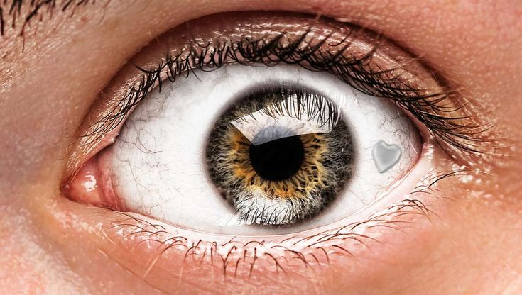 An extraocular implant is when a tiny piece of decorative jewelry is implanted on the conjunctiva of the human eye. It is a relatively new procedure. It is relatively quick and the eye is usually...