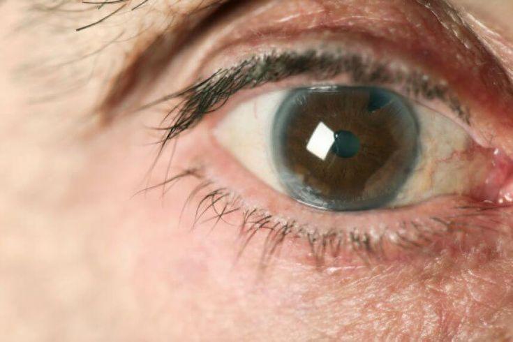 En el siguiente artículo podrás enterarte cómo evitar el glaucoma de manera natural.