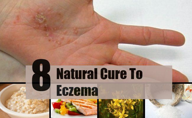 eczema natural approach While there is no cure for eczema, you can try a non-invasive and natural eczema treatment that can provide relief during a flare-up, and prevention.