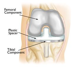 Knee Replacement Implants-OrthoInfo - AAOS
