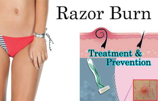 Consider, that bikini razor burn remedies something is