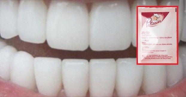 Weiße Zähne in 180 Sekunden