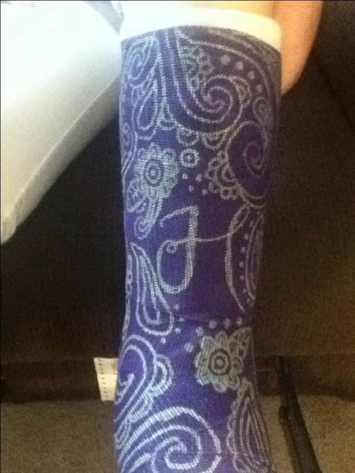 Purple leg cast with silver sharpie designs