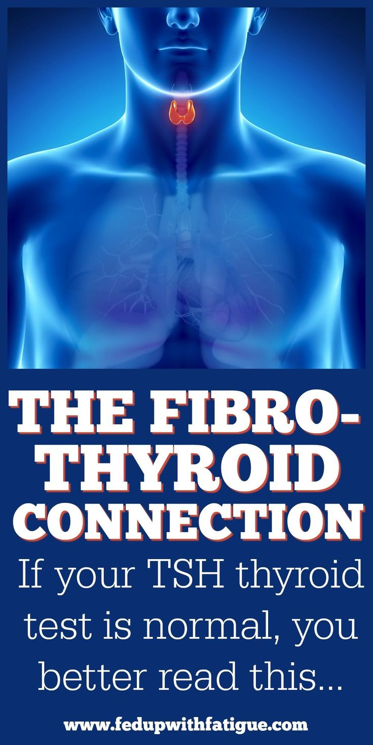 Thyroid conditions are commonly misdiagnosed as fibromyalgia. You can have underlying thyroid dysfunction even with a normal TSH test! Find out how to be properly evaluated for thyroid disorders and their connection to fibromyalgia here! | Fed Up with Fatigue
