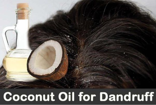 Home Remedies For Dandruff Treatment In this article, we will discuss the home remedies for dandruff treatment. Everyone take dandruff as a burden because hair defines our personality more than any other attributes. Home remedies for dandruff treatment are not only useful to treat dandruff, but they are also helpful for a healthy... #AvoidDandruff, #CureDandruff, #Dandruff, #DandruffTreatment, #GetRidOfDandruff, #GetRidOfDandruffFast, #GetRidOfDandruffQuickly, #NaturallyGet