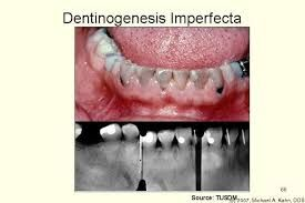 Dentinogenesis imperfecta (seen in some types of osteogenesis imperfecta)