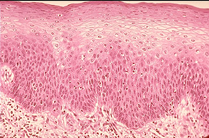Stratified Squamous Epithelium: Rounder Basal Cells, Flatter Cells Approaching the Apical Surface