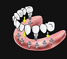 Here's What New Dental Implants Should Cost You - View Pricing
