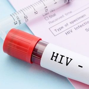 #Australian prostitute convicted for infecting man with HIV - News24: News24 Australian prostitute convicted for infecting man with HIV…