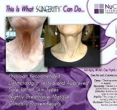 skincerity before and after - Google Search