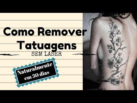como remover tatuagem   como remover uma tatuagem   guia completo para r...