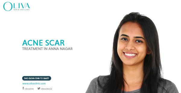 Don't neglect your #scars because as you thought they are not permanent. Get Pixel laser treatment @olivachennai , at Anna nagar and see them fade away revealing your smooth skin.