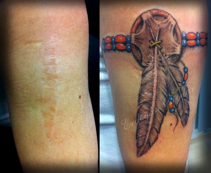 17 best images about tatouages cicatrices on pinterest for Tattoos to cover surgery scars