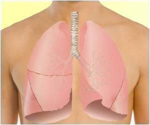 A recent research shows clear association between estrogen and tobacco smoke. The hormone estrogen may help promote lung cancer—including compounding the effects of tobacco smoke on the disease.