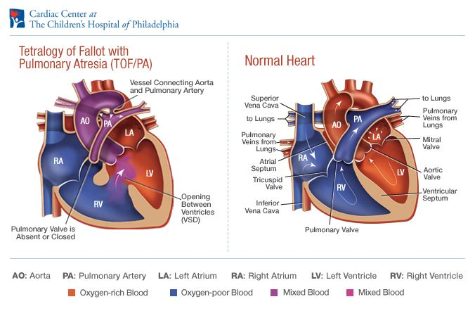 Image result for diagram of tetralogy of fallot with ...