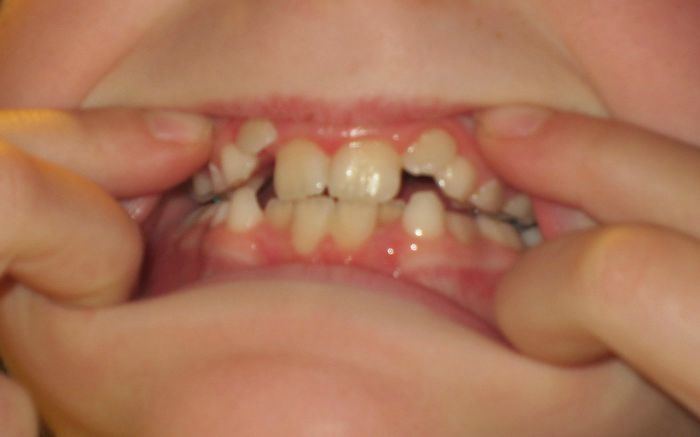 17 Best Images About Spacers Braces On Pinterest Kid