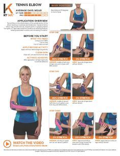 Tennis Elbow: KT Tape helps treat this condition by relieving pressure, relaxing associated muscles, and increasing circulation