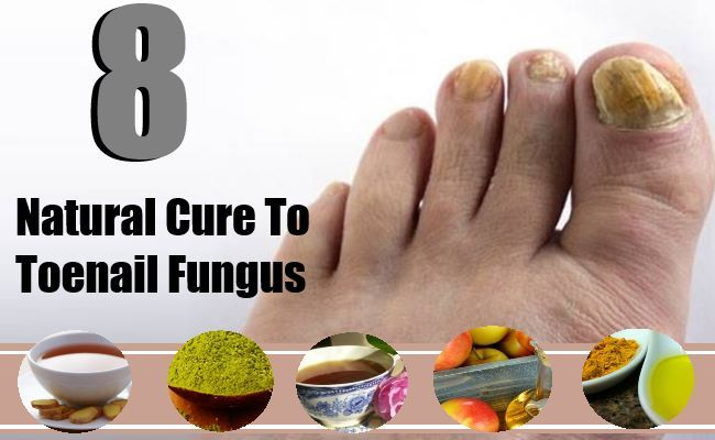 8 Natural Cure For Toenail Fungus - Treatments For Toenail Fungus | Search Herbal & Home Remedy