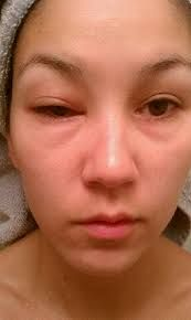 Sjogren syndrome is an autoimmune condition where usual body cells are attacked by its own immune system. Some viral of bacterial infection can act as a trigger. Exocrine glands of the body such as tear glands, salivary glands, sweat glands and glands in gestointestinal tract are affected..... https://naturalcureproducts.wordpress.com/2014/10/04/all-there-is-to-know-about-sjogren-syndrom-2/
