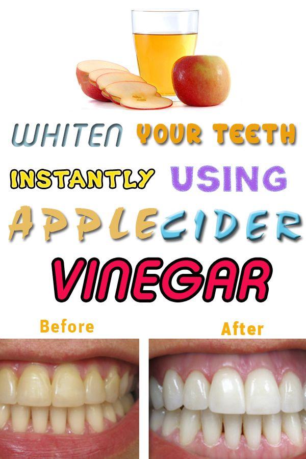 Apple Cider Vinegar — Best Home Remedy for Whiter Teeth…