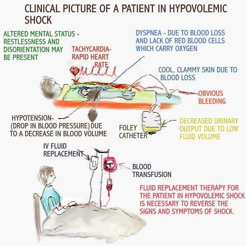 [HYPOVOLEMIC+SHOCK+-+SIGNS+AND+SYMPTOMS.JPG]