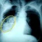 Infeksi Paru-paru atau disebut juga Pneumonia merupakan peradangan paru yang disebabkan oleh infeksi bakteri, virus maupun jamur. Pada oranng dewasa penyebab terbanyak adalah karena bakteri, seperti bakteri Streptococcus pneumoniae, Staphylococcus aureus, Legionella, Hemophilus influenzae.