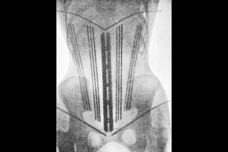 Corsés, la moda del siglo XIX, en rayos X