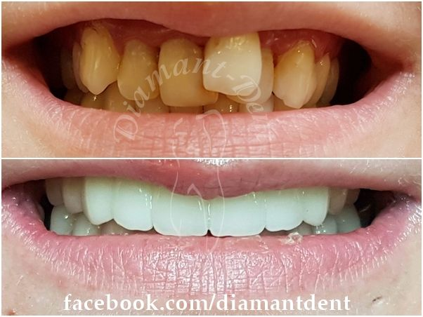 New Smile, new life :) Before After Photo! Have a Bright smile! Dental Bridge, Diamant Dent