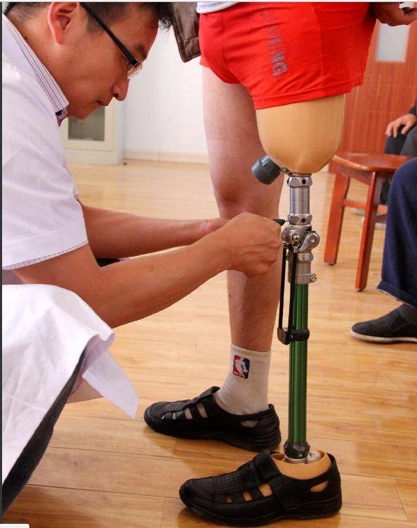 prosthetic foot carbon,prosthetic leg cost,prostheti knee joint