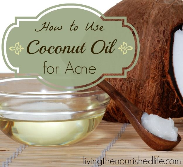 Coconut Oil for Acne | The Nourished Life I've been using coconut oil as makeup remover & cleanser for face & body. Love it. Seems to be clearing up my skin.