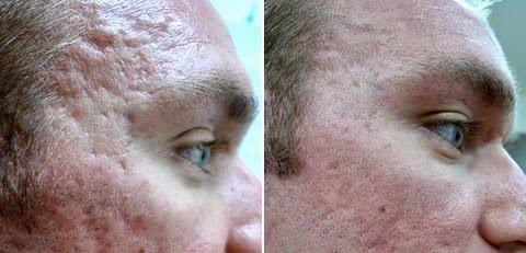 Kadınca Bakış: Akne Lekeleri İzleri ve Çukurlarının Tedavisi