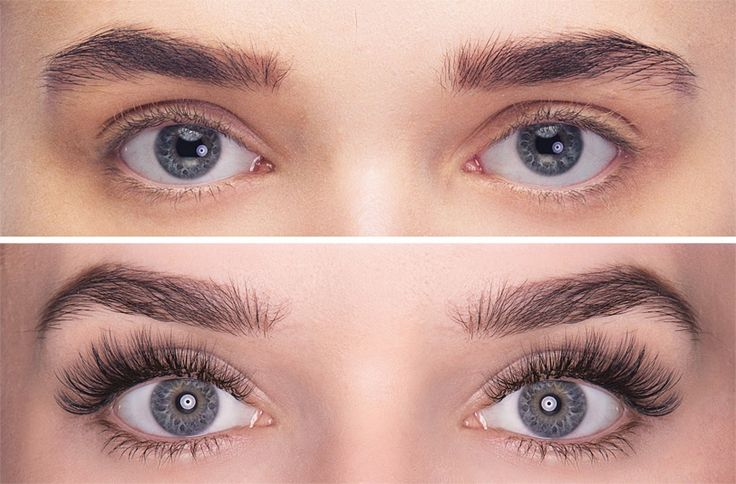 before and after volume lash