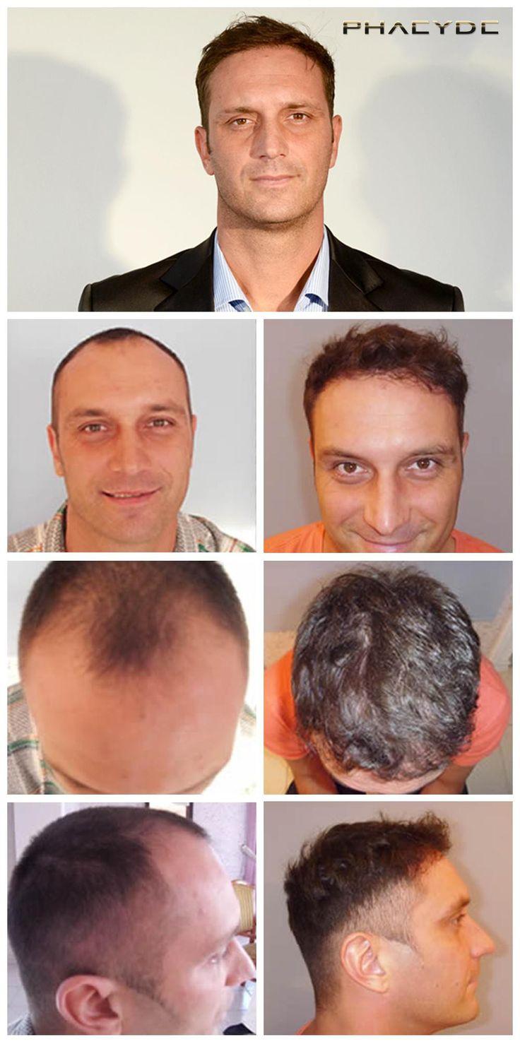 Foto zabezpečenej výsledky z Transplantácia vlasov závisí od množstva transplantovaných vlasov http://sk.phaeyde.com/transplantacia-vlasov