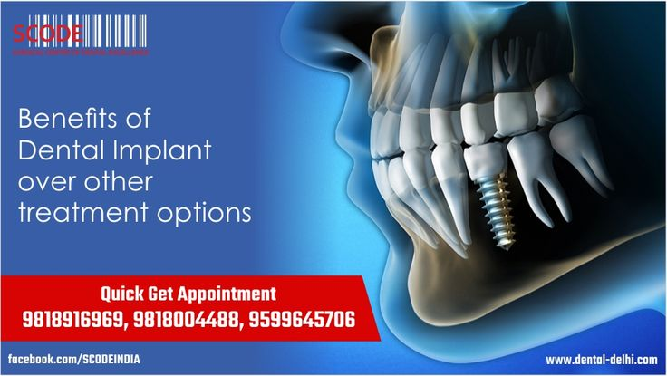 Dental implants may be an option for people with missing teeth. Do you know what are the benefits of Dental Implants treatment over all other treatment option.  more: http://goo.gl/35FFwC