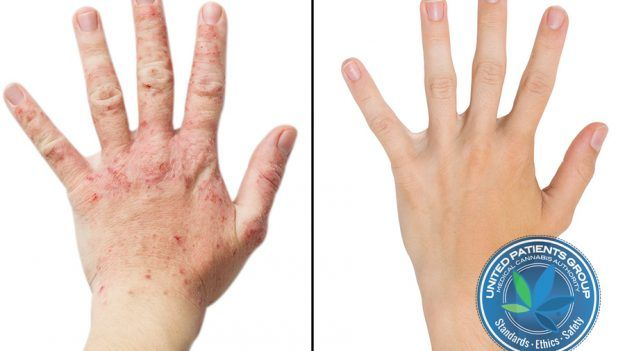 How Cannabis Alleviates Symptoms of Eczema  https://unitedpatientsgroup.com/blog/2017/03/06/how-medical-cannabis-alleviates-symptoms-of-eczema/ #eczema #unitedpatientsgroup #cannabinoids #immunesystem #stress #cbd #thc #thca #pain #inflammation #medicalcannabis