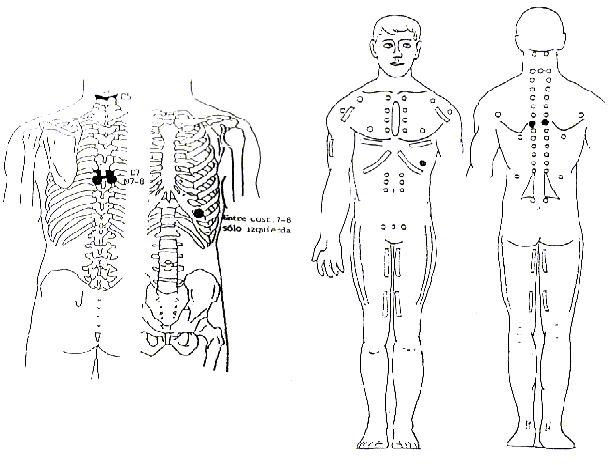 Dorsal mayor y dorsal ancho REFLEJO NEURO – LINFATICO Anterior: Espacio intercostal entre la 7ª/8ª costilla, en el punto de conexión oseocartilaginoso. (En el lado izquierdo).  Posterior: Espacio intertransverso entre la 7ª/8ª dorsal PATOLOGIA  Diabetes Mellitus, hipoglucemia y alergias.     Causas: Dietas con demasiado azúcar, café, tabaco o alcohol.  NUTRICION  Vitaminas A y F. Extractos pancreáticos.