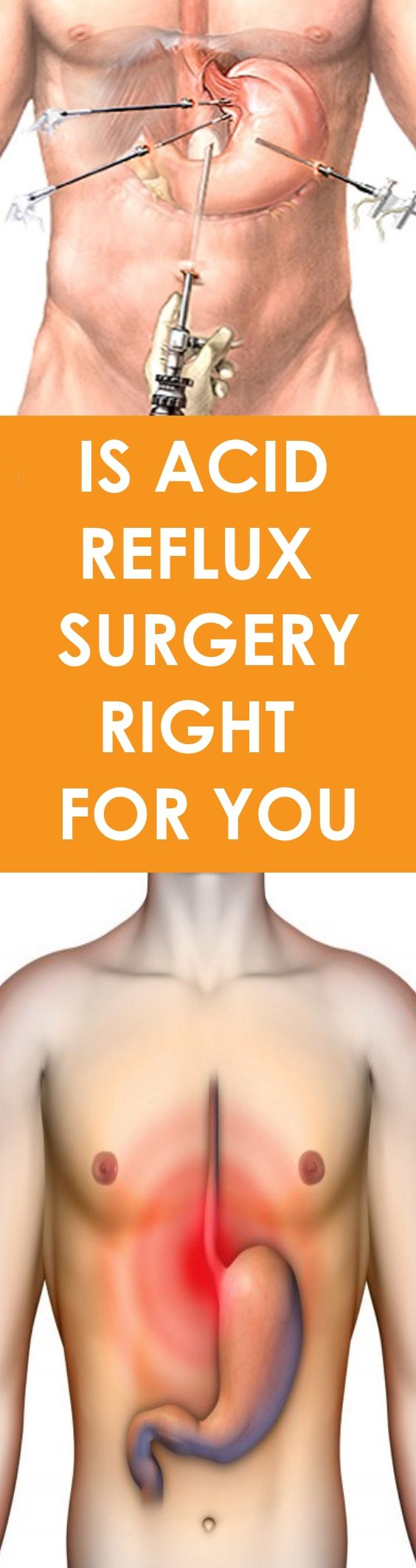 is acid reflux surgery right for you