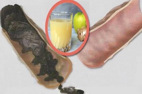 Vastagbeled tele van méreganyagokkal és amiatt nehéz fogynod is!