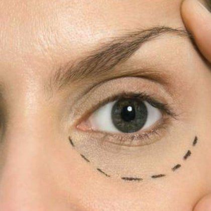 Это простое средство убирает морщинки под глазами