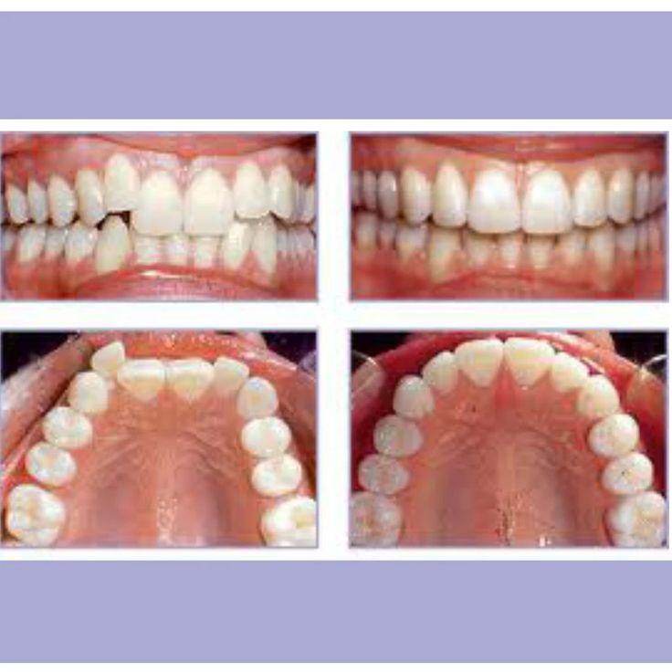 OrthoSnap New York | Straight Teeth Without Metal Braces | Manhattan, Brooklyn and Long Island | 1.844.678.4676 | http://www.OrthoSnapNY.com/ | #braces #clearbraces #crookedteeth #smile #beauty #surprise #MagicSmile #InvisibleBraces #teenbraces #AdultBraces #teeth #PerfectTeeth #style #newyork #motivation #dentist #orthodontist #BracesAlternative #model #healthy #newyorker #newyorkstyle #newyorksmile #celebrity #perfectsmile #hollywoodsmile #correctcrookedteeth #youtube