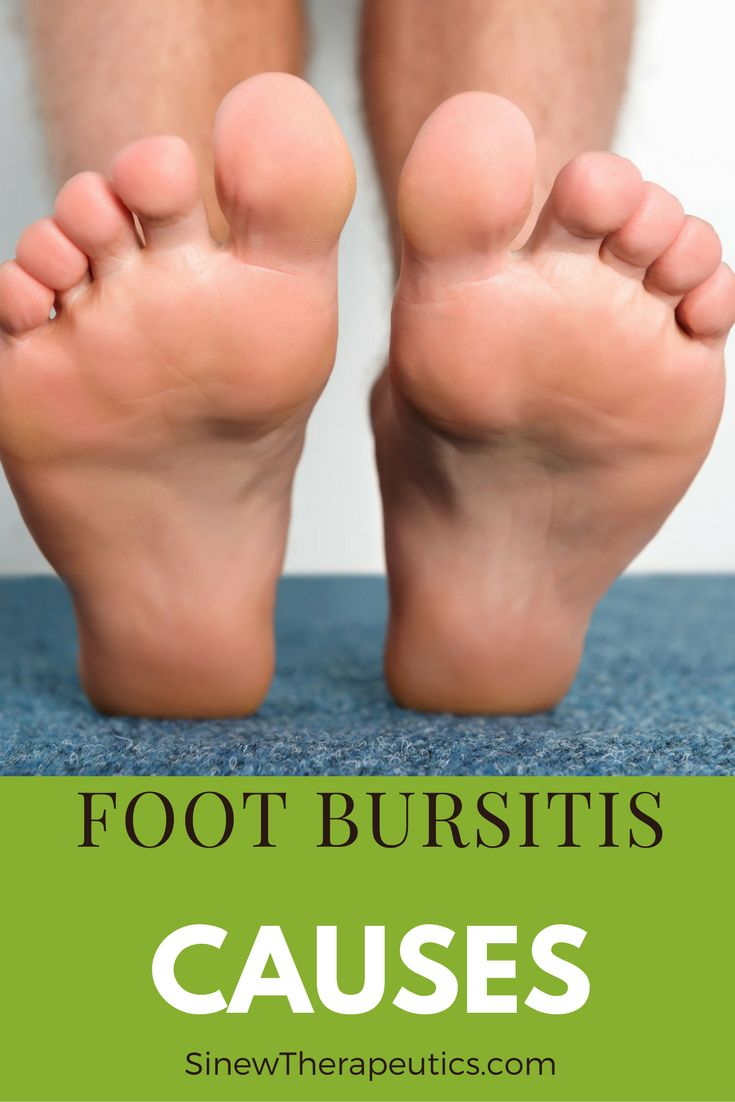 Best Shoes For Foot Bursitis