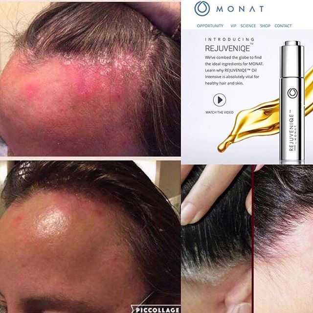 Know anyone that has PSORIASIS or ECZEMA? MONAT to the ...
