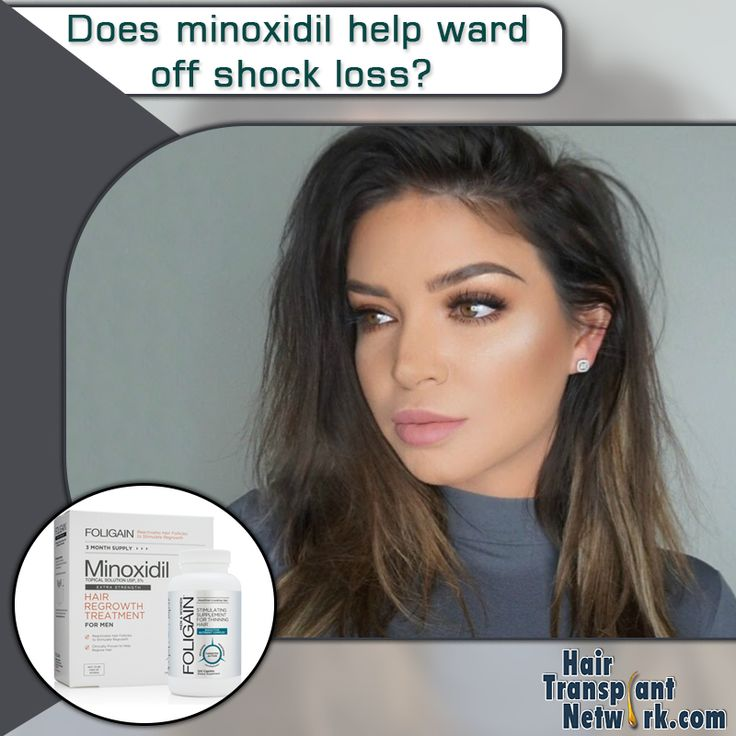 Does #hair_grow back after #shock_loss? Can #minoxidil ...