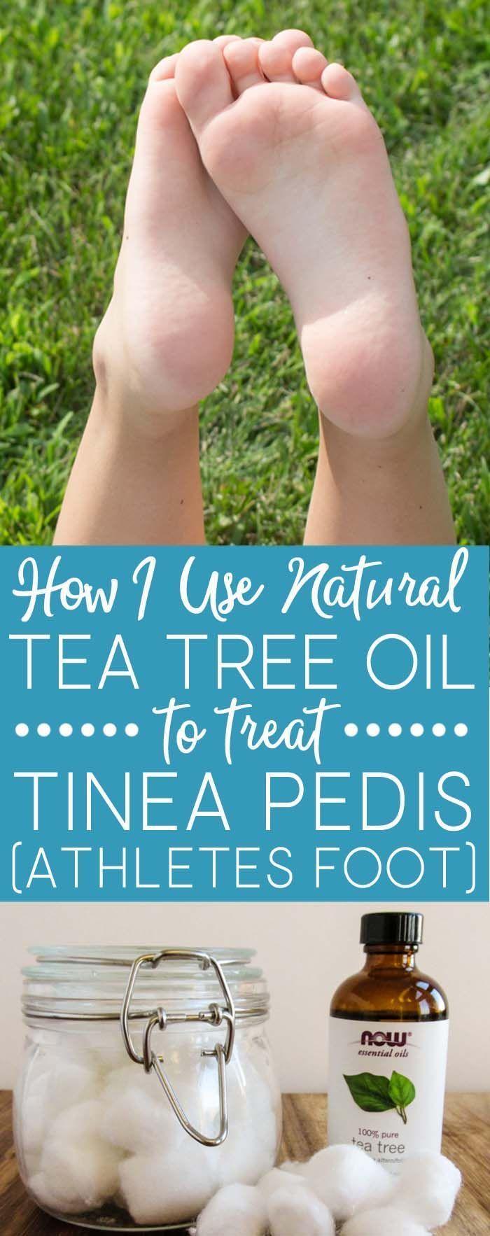 Learn how I successfully use tea tree oil to treat tinea pedis (athletes foot) i
