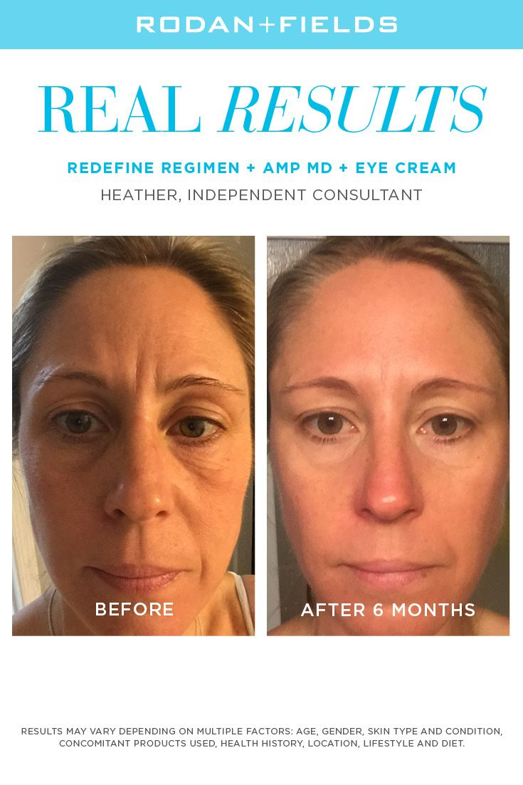 269442fcb80 Redefine ... smoother, flawless-looking skin - in 2019 | Rodan + Fields::  Redefine anti-aging, wrinkles, pores, loss of firmness and fine lines |  Redefine ...