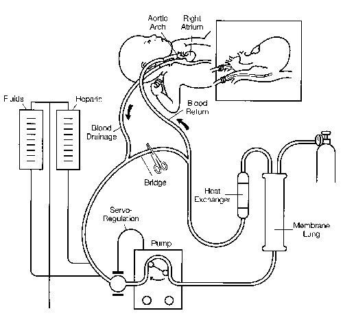 Diffusion of Extracorporeal Membrane Oxygenation (ECMO): Report of the Workshop