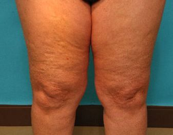 how to get rid of cellulite on legs diy