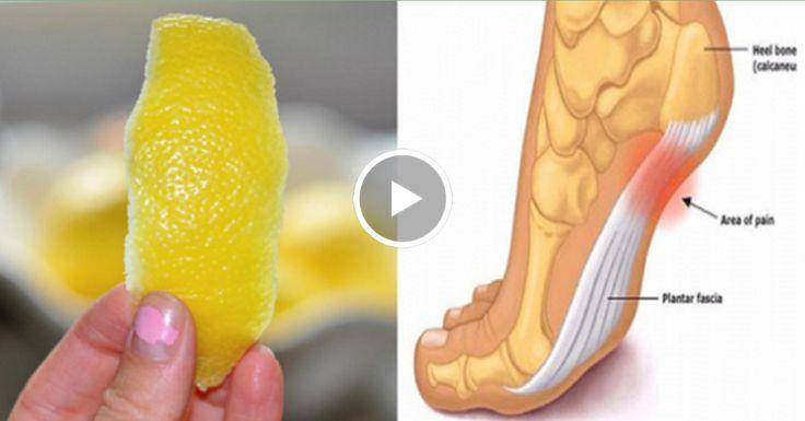 Кожура лимона может удалить боли в суставах навсегда! Мы все знаем, что лимоны — это действительно эликсир здоровья. На самом деле, вы, вероятно, знаете, что он прекрасно подходят для соков утром перед завтраком, не так ли? Употребляялимоны каждый день, действительно дарит нам здоровье! Этот фруктявляется наиболее культивируемых фруктов в мире. Он полон минералов и витаминов, …