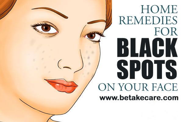 Do you have a black spots  on the face? So here is mention Home Remedies for Removing Black Spots on Face.