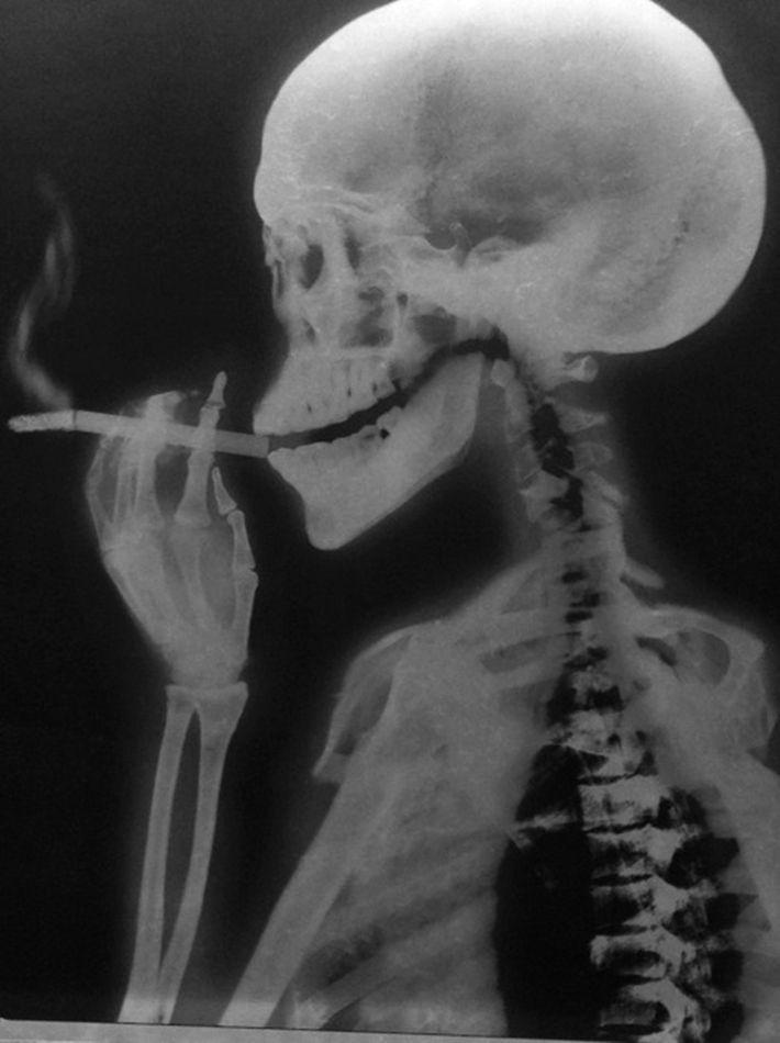 skull   bones   skeleton   smoking   smoke   x ray   the human condition